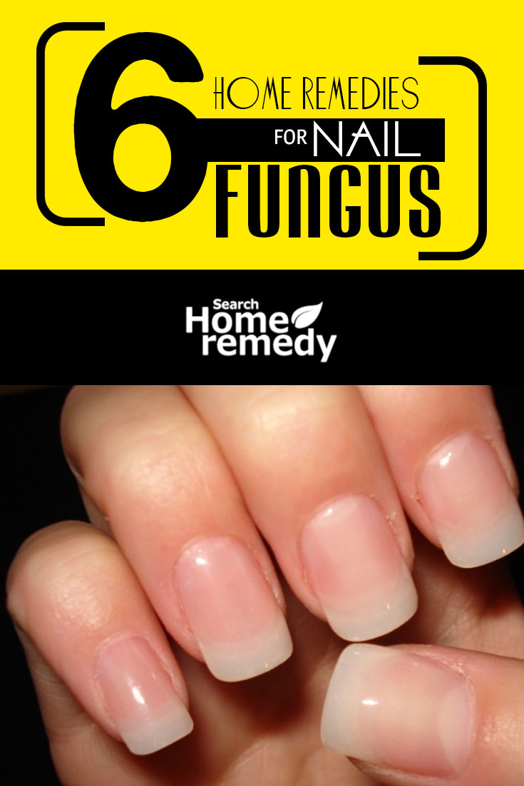 6-home-remedies-for-nail-fungus