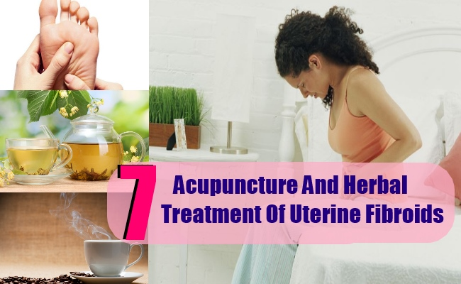 7 Acupuncture And Herbal Treatment Of Uterine Fibroids
