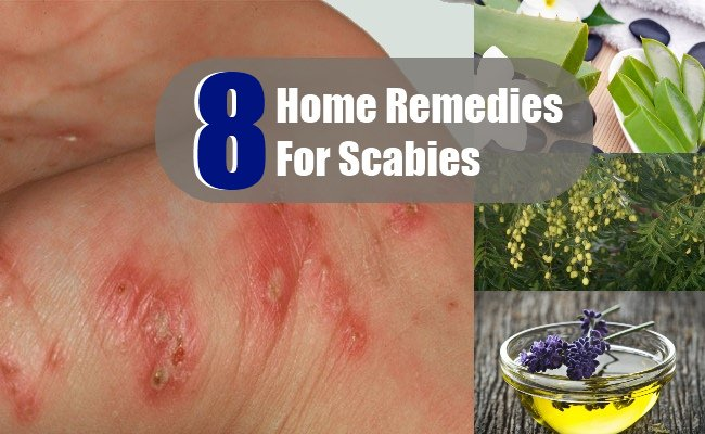 8 Home Remedies For Scabies