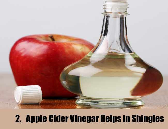 Apple vinegar For Shingles