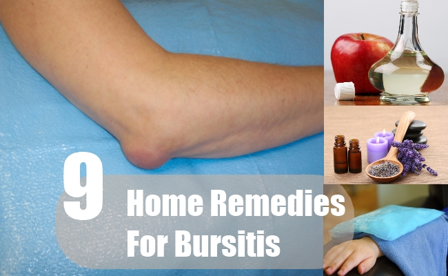 Home Remedies For Bursitis