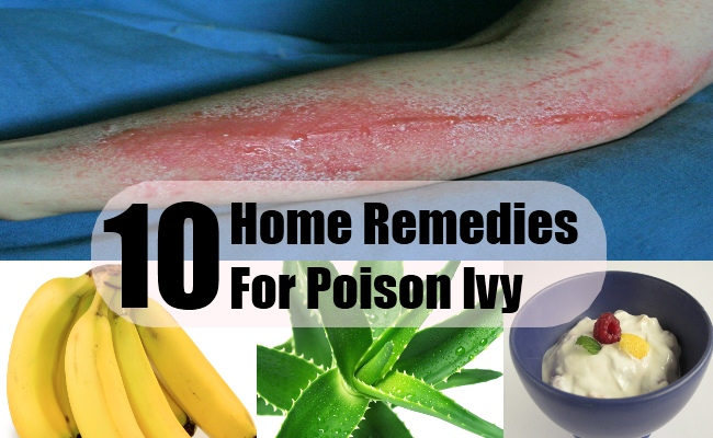 Natural Remedy For Poison Ivy Blisters