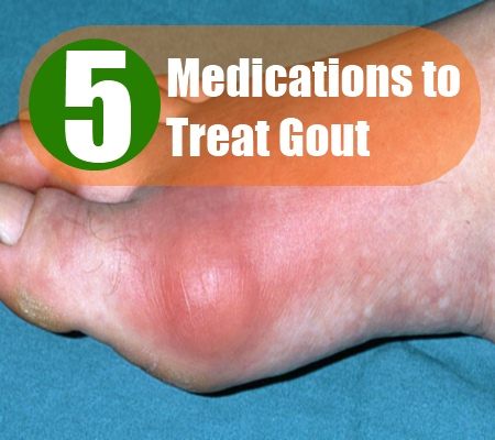Are there any over-the-counter treatments for gout?
