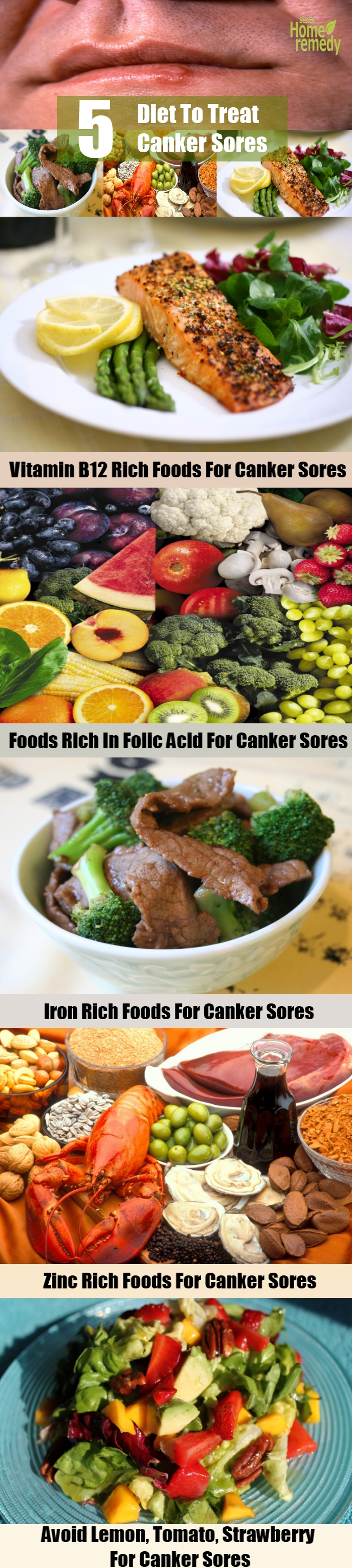 5 Diet To Treat Canker Sores