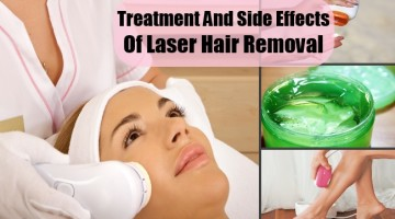 Treatment And Side Effects Of Laser Hair Removal