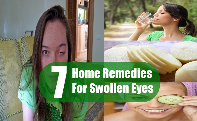 Home Remedies For Swollen Eyes