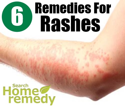 rashes caused by viruses #11