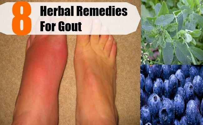 do you treat gout with heat or cold will vitamin c reduce uric acid can high uric acid cause arthritis