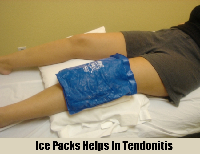 Ice Packs Helps In Tendonitis