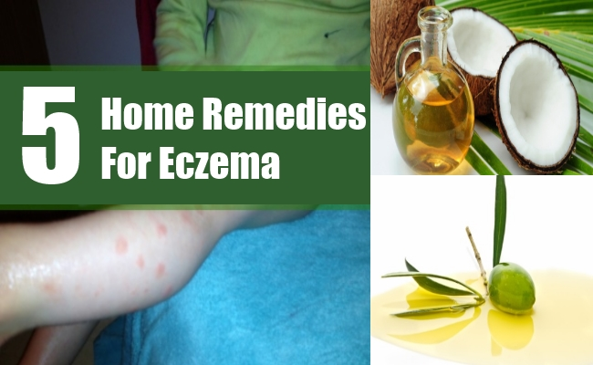 Natural Remedy For Weeping Eczema