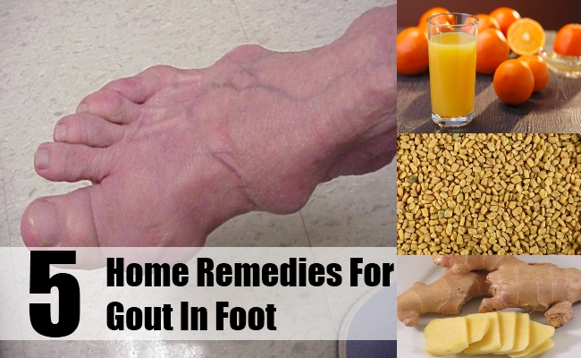 acute gout in ankle food uric acid list uric acid diagnosis and treatment
