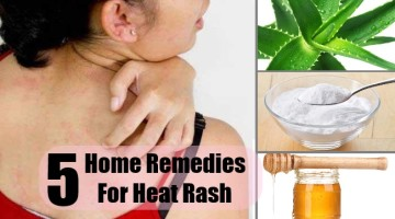 5 Effective Home Remedies For Heat Rash