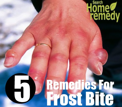 Top 5 herbal remedies for frost bite how to treat frost bite feet toes hand fingers nose ears are affected by frost bite people who spend most of their time outdoors who consume alcohol who are dehydrated fandeluxe Ebook collections
