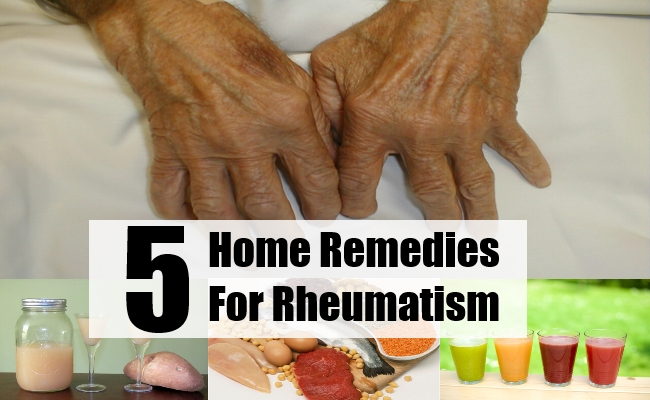 home remedies for rheumatism essay List of home remedies for alternative health treatment and medical conditions  including herbs spices and essential oils.