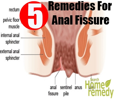 5 home remedies for anal fissure | search home remedy, Skeleton