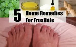 Home Remedies For Frostbite