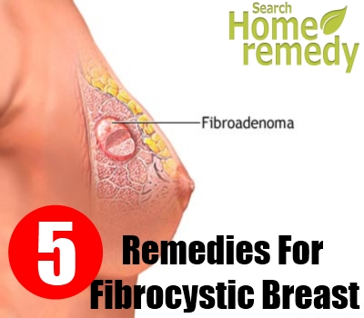 Breast disease fibrocystic symptom