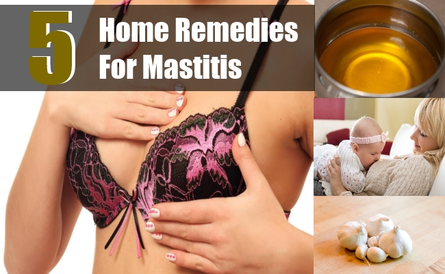 Home Remedies For Mastitis
