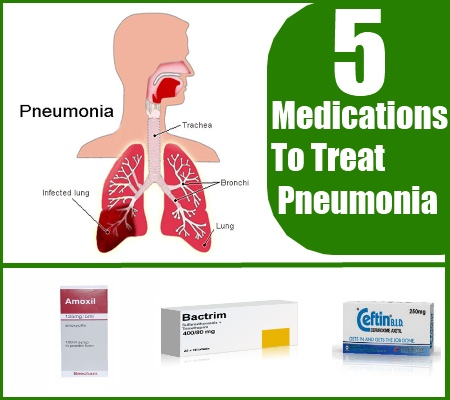 how to treat pneumonia with drugs and medications | search home remedy, Human Body
