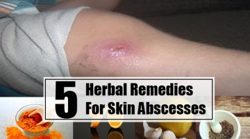 Herbal Remedies For Skin Abscesses