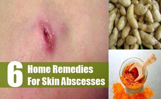 Home Remedies For Skin Abscesses