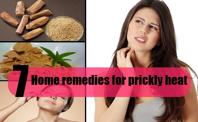 7 Home remedies for prickly heat