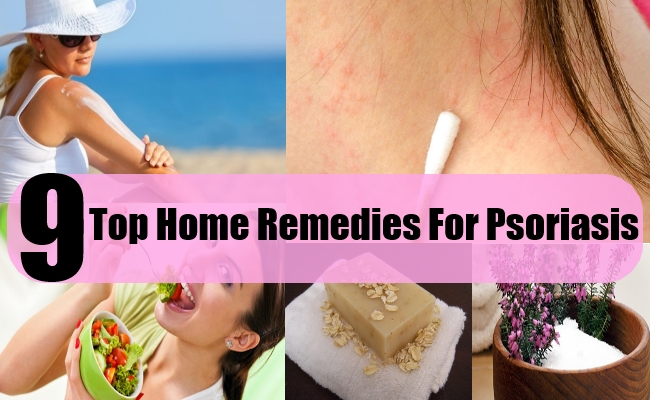 9 Top Home Remedies For Psoriasis