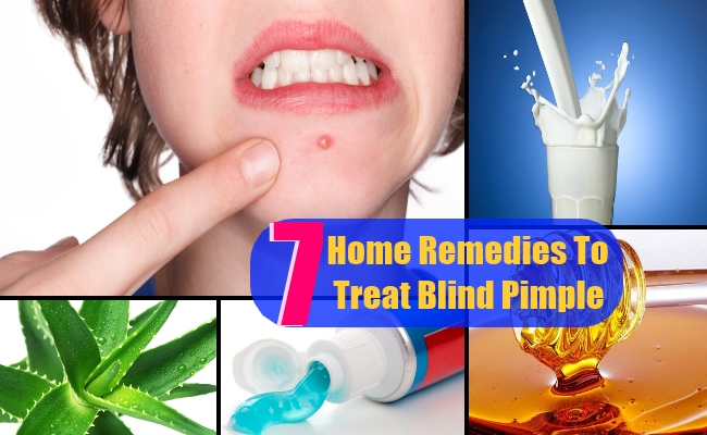 7 Top Home Remedies To Treat Blind Pimple