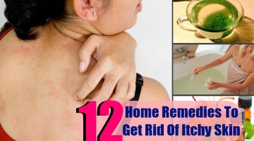 12 Top Home Remedies To Get Rid Of Itchy Skin