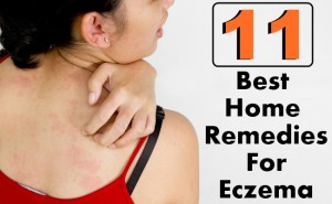 11 Best Home Remedies For Eczema