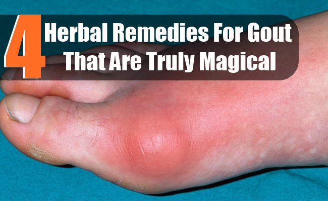gout pain baking soda foods high uric acid content uric acid in blood diet