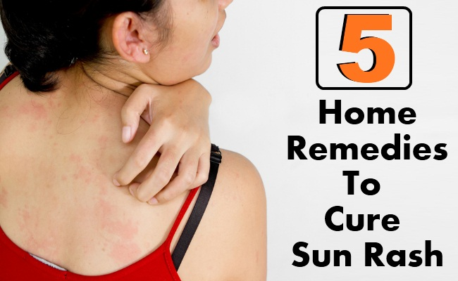 Best Natural Cures For Rash