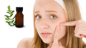 7 Easy Home Remedies For Acne Using Tea Tree Oil