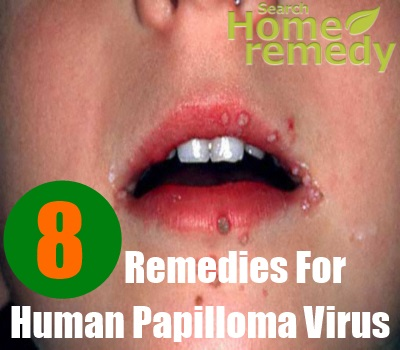8 Home Remedies For Human Papilloma Virus Search Home Remedy