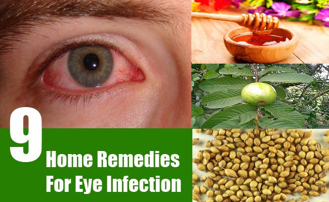 Fungal Eye Infection Home Remedy