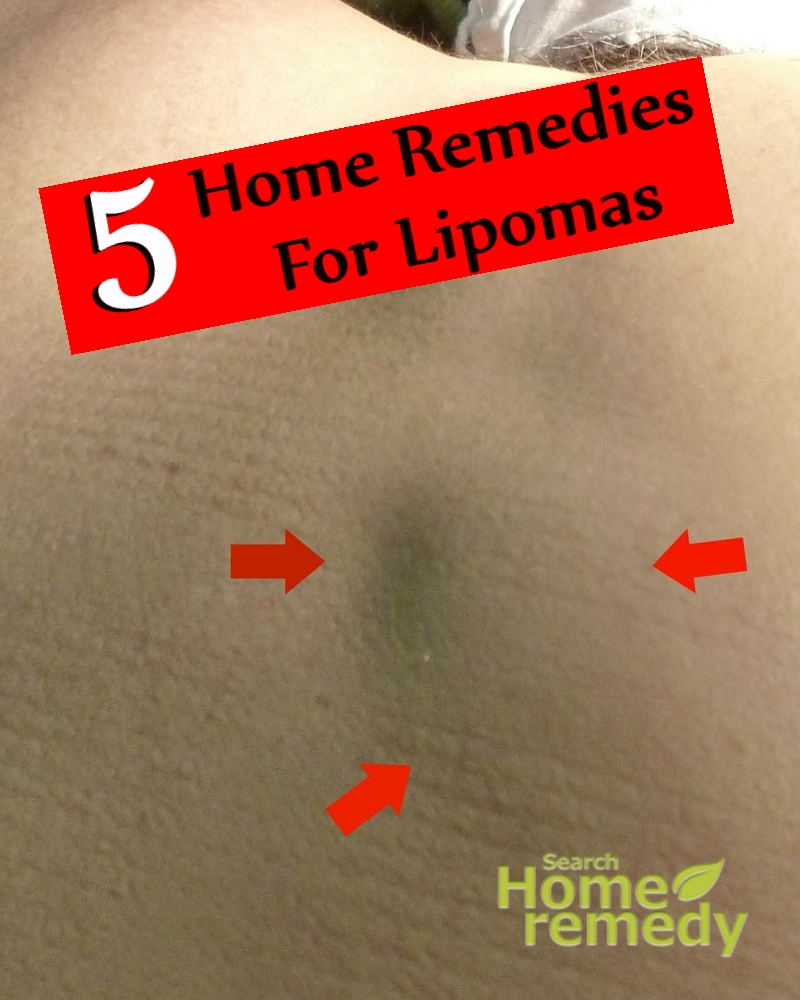 Remedies For Lipomas