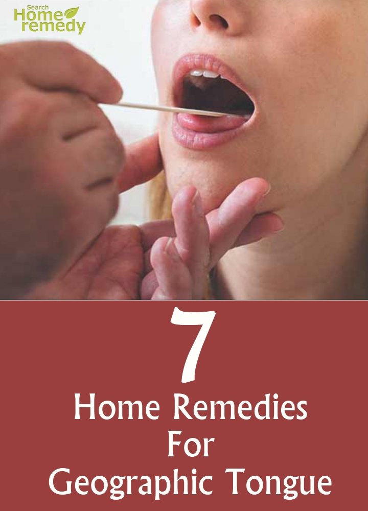 7 home remedies for geographic tongue search home remedy