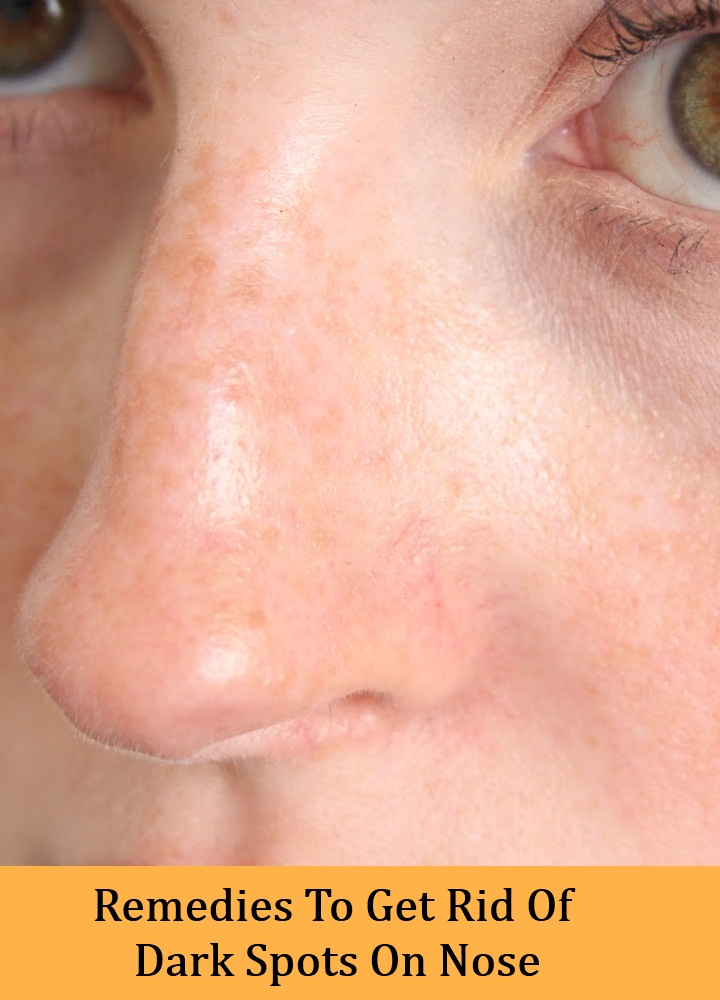 How To Remove Dark Spots On Nose Naturally