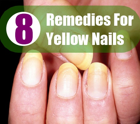 8 Remedies for Yellow Nails