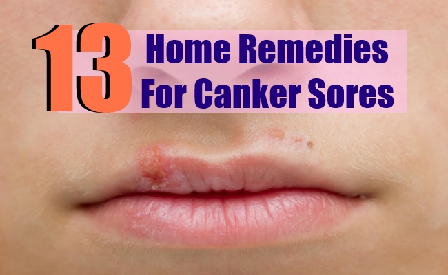 9 Canker Sores Home Remedies Natural Treatments And Cures